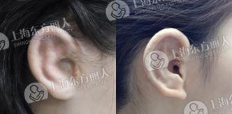形成 不全 外耳